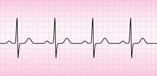 ECG, ou Electro Cardiogramme, IMM